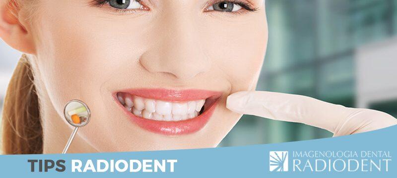 carillas-dentales-o-blanqueamiento