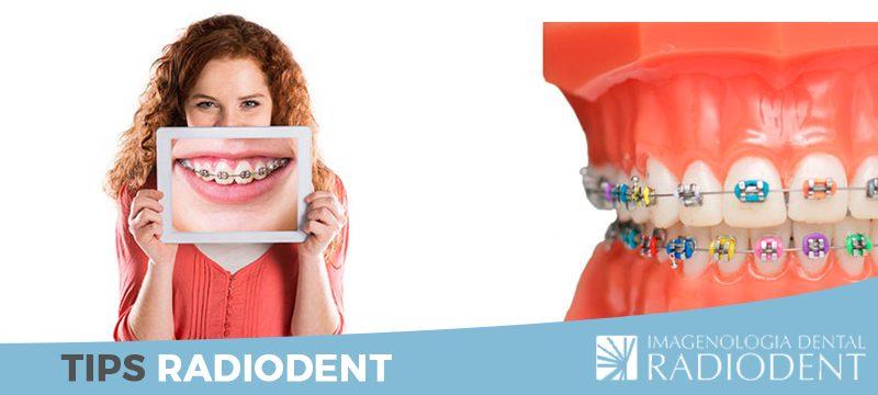 ortodoncia-sonrisa